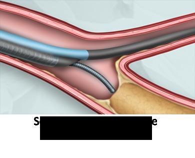 nhancer rx dual lumen rx micro catheter imds